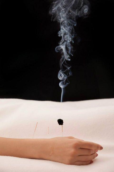 Alternative Acupuncture Medicine Therapy
