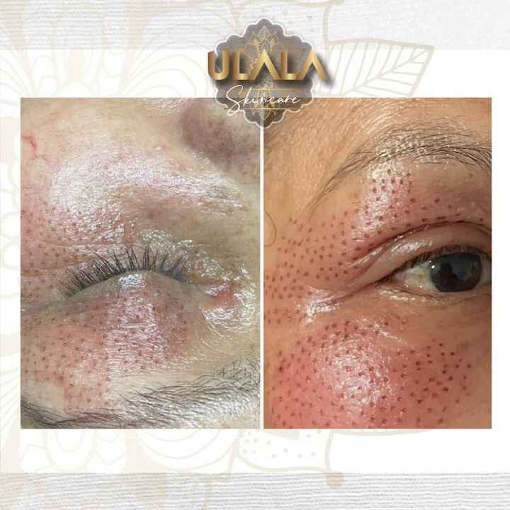 Photos from Ulala Skincare's post